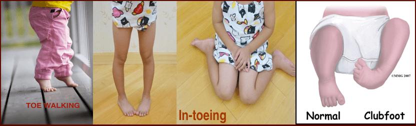 Children's Feet Issues