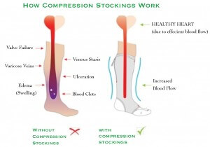 Compression socks benefits Brampton