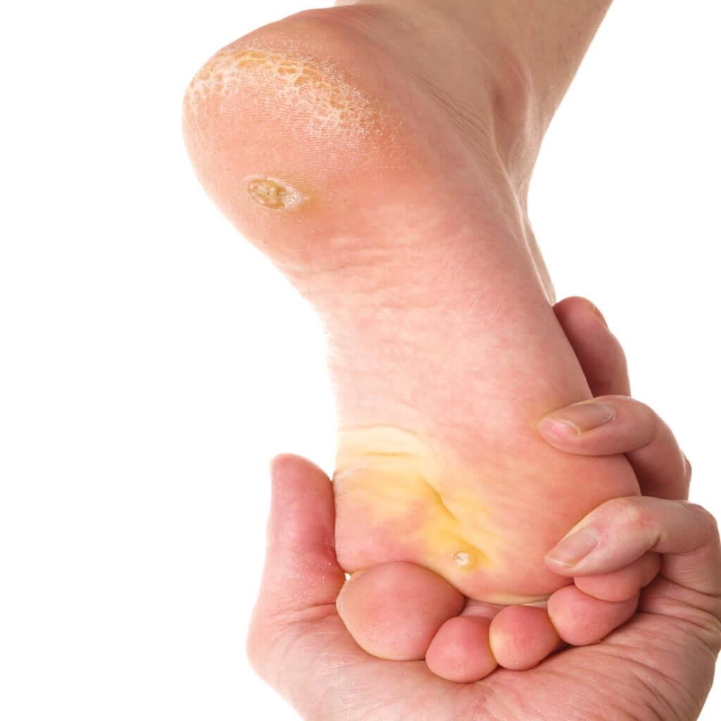 callus under foot treatment