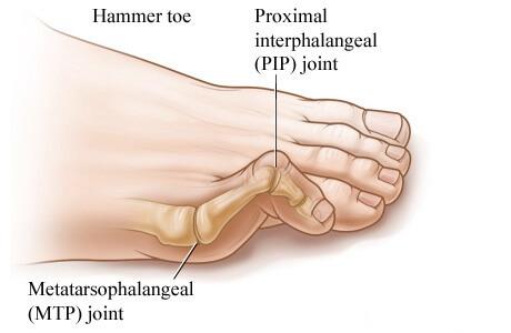 Hammeror claw Toe Brampton
