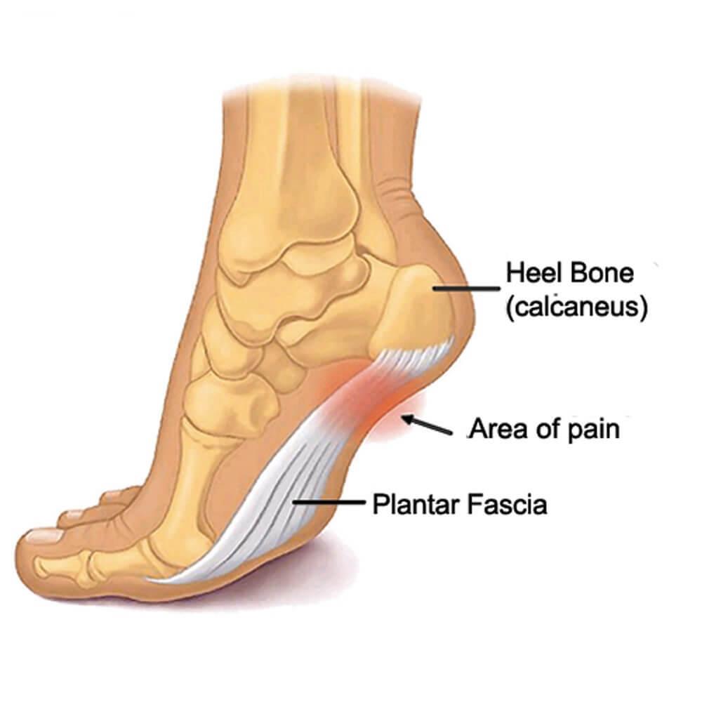 Plantar Fasciitis - Brampton Foot Clinic