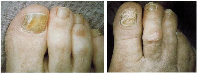 fungal nail Brampton