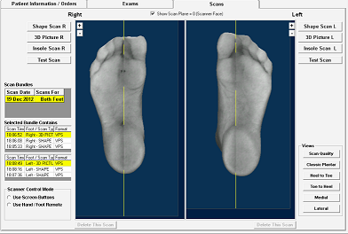 Custom Orthotics Brampton Foot Clinic Treating Foot