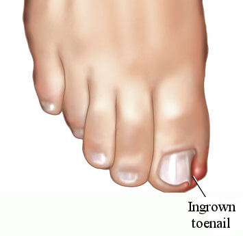 Ingrown Toenail treatment Brampton