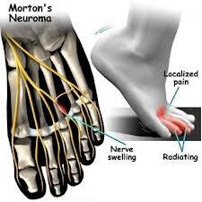 Mortons neuroma Brampton