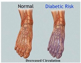 Diabetic foot risk