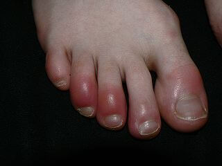 foot issues in winter